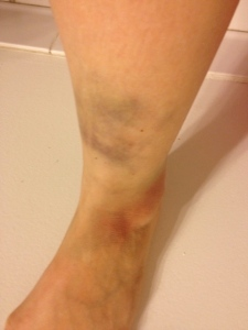 It takes talent to bruise your ankle